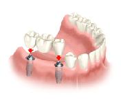 implant-p3