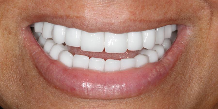 Reabilitare orală totală estetică și funcțională
