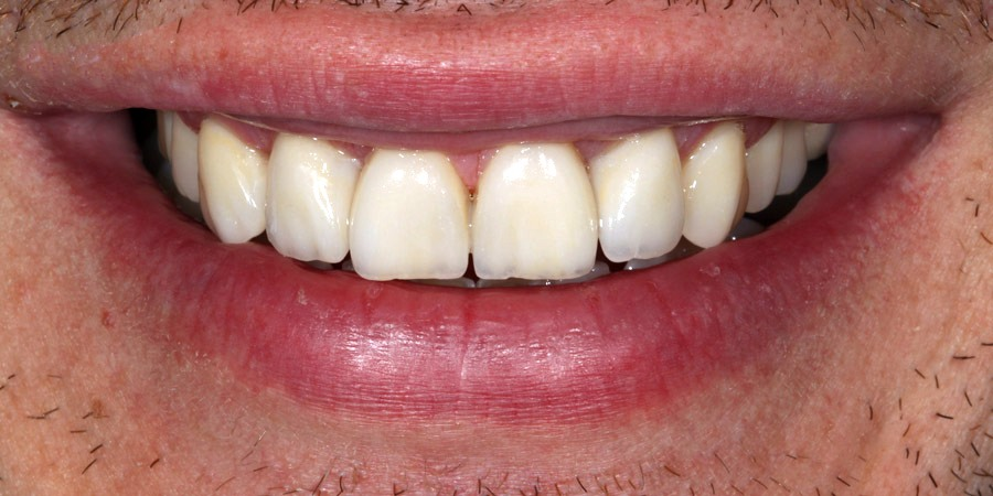 Aesthetic restoration of anterior superior dental fittings
