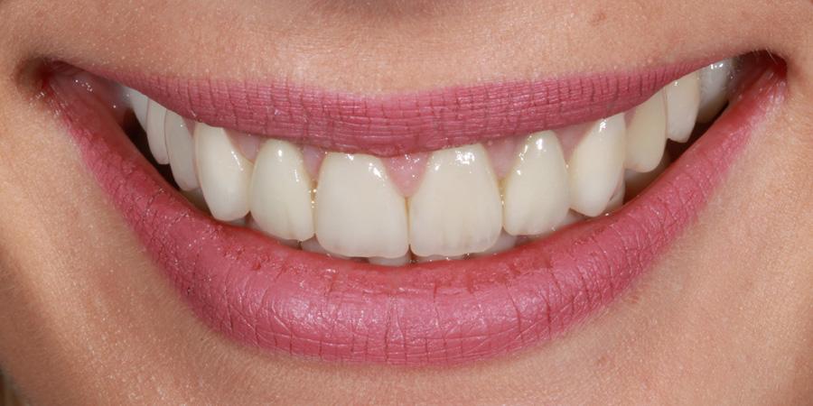 Reabilitare orală complexă bimaxilară