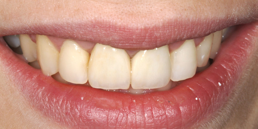 Aesthetical rehabilitation of the upper incisor