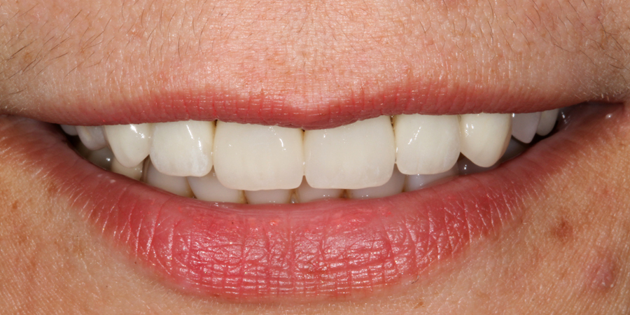 Reabilitare estetică a dinților arcadei maxilare