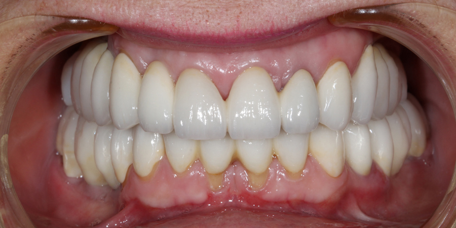 Bimaxillary complex oral rehabilitation with dental and implant supported restorations
