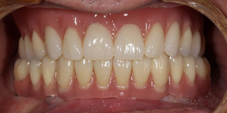 Reabilitare orală la vârstnici