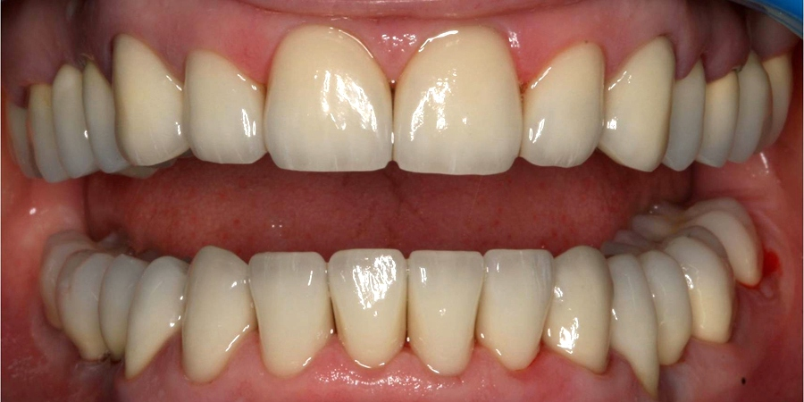 Reabilitare orală complexă (maxilar și mandibulă)