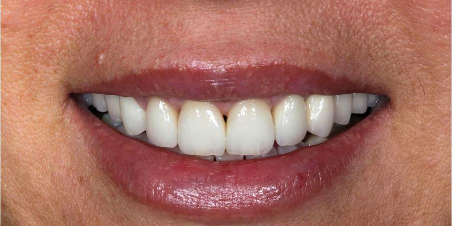 Reabilitare orală complexă (maxilar și mandibulă) – Restaurări protetice fixe integral ceramice
