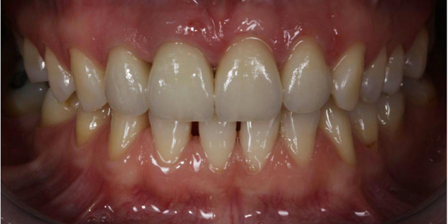 Reabilitare orală maxilar și mandibulă