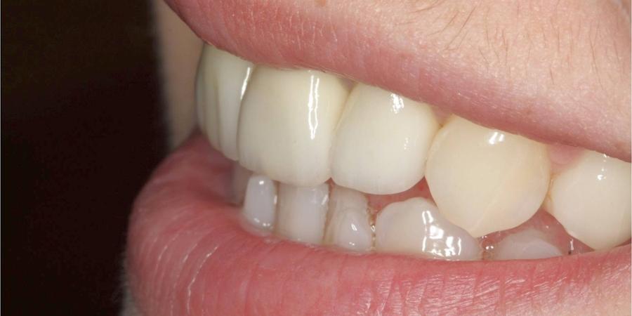 Reabilitare orală în zona estetică – Integral ceramică