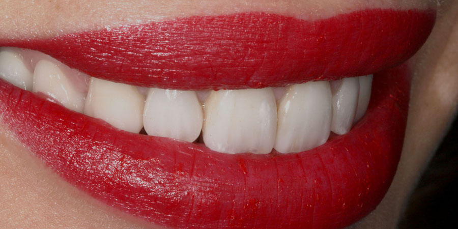 Reabilitarea estetică și funcțională a unui zâmbet